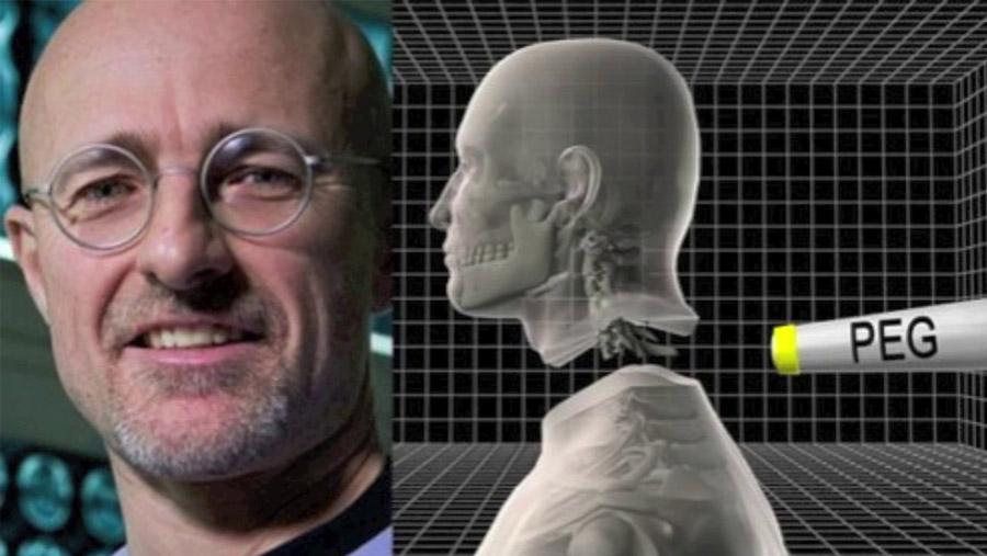 World's first human head transplant!