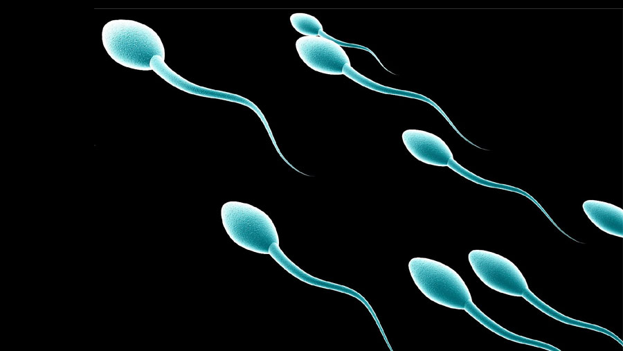 Low sperm count linked to health problems