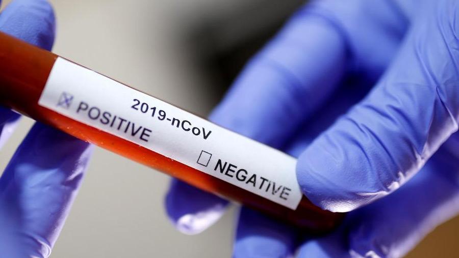 Bangladesh reports second coronavirus death